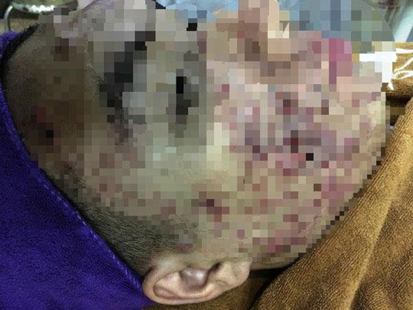 Một phụ nữ bị cày nát da mặt sau lăn kim làm đẹp